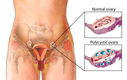 Polycystic Ovarian Syndrome PCOS 01